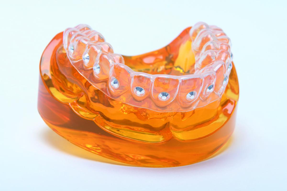 teeth whitening melbourne